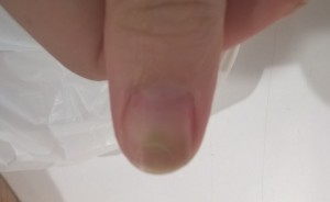 Help! My Nail is Turning Green!